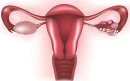 1900_pcos_ovarian_cysts_symptoms