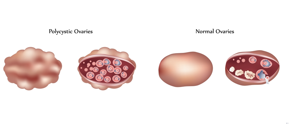 PCOS-ovaries-diagram1