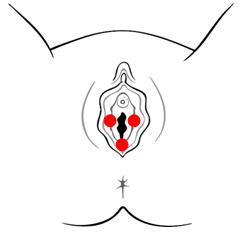 vulvar vestibulitis