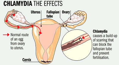 chlamydia-1
